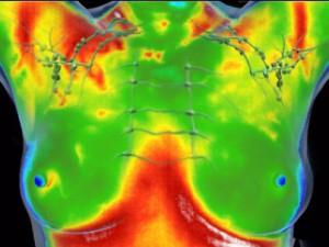 infrarood-medische-thermografie-borst-screening